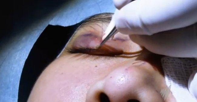 psychological screening before cosmetic surgery