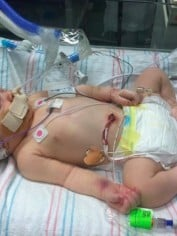 baby forceps death