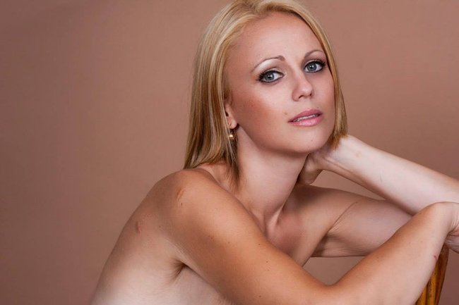 double mastectomy photos