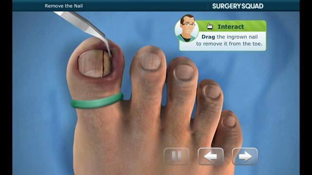 Ingrown Toenail Diagram 2017 2018 Best Cars Reviews