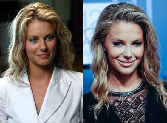 jennifer hawkins plastic surgery before and after photos