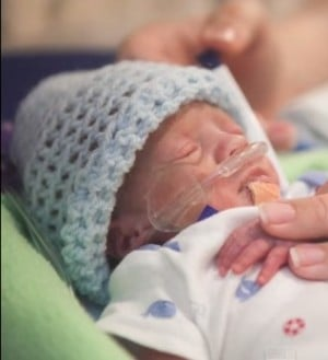 premature baby time lapse video