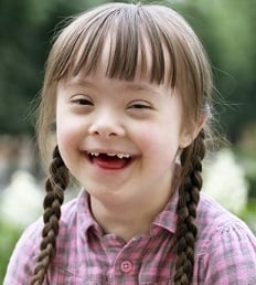 down syndrome girl 2