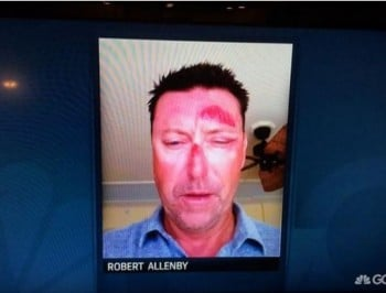The Golf Channel is reporting that Australian Robert Allenby has been kidnapped, beaten and robbed in Honolulu.
