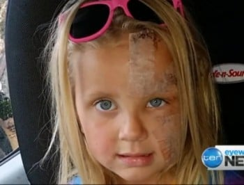 A vicious pitiful attack leaves a 5-year old girl starting school with horrific injuries.