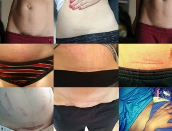 C Section scars