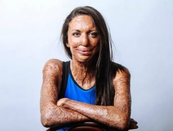 "Turia Pitt:  ""When people say they feel sorry for me, I don"