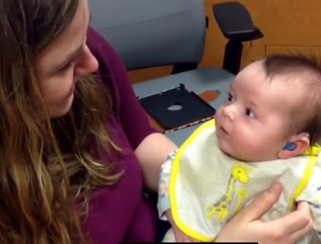 deaf newborn hears for the first time