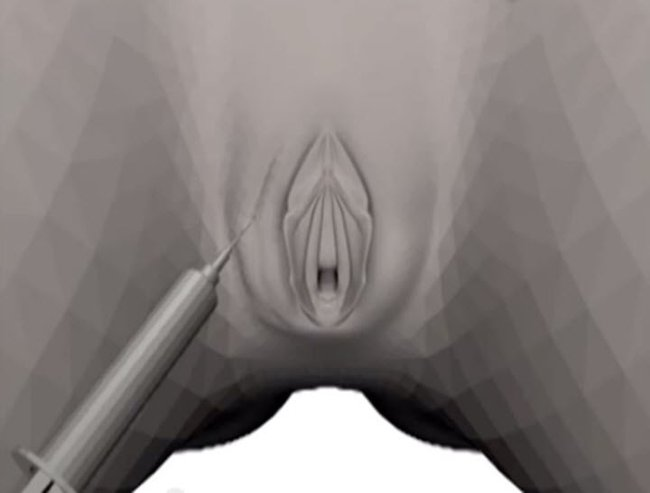 Vagina inject An image from a video that I will never un-see. Source:  YouTube