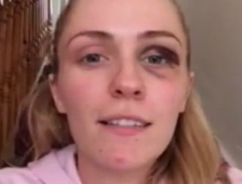 The video of a young woman with a black eye everyone
