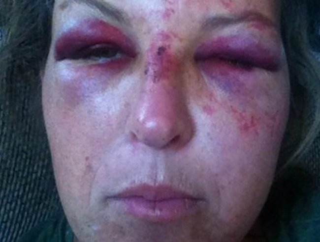 day care worker beaten