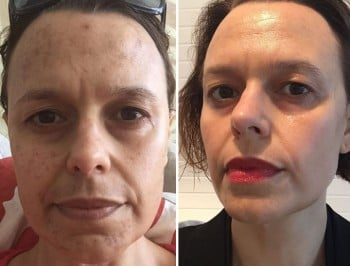 laser treatment on face