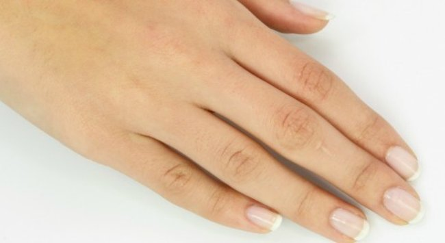 What causes fingernail ridges and how to treat them