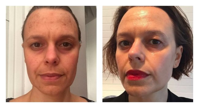 Ask Mia: Mia Freedman laser treatment questions answered