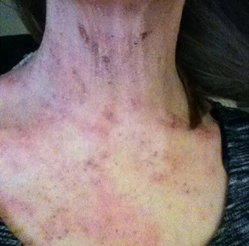 Amy Louise James Shares Her Experience With Severe Eczema