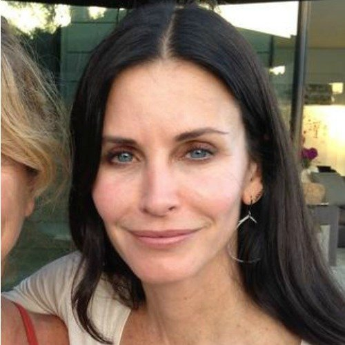 Celebrity Botox Pictures - Photos of Stars Before and ...