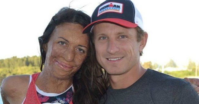 Five years ago turia pitt couldn t walk yesterday she finished an