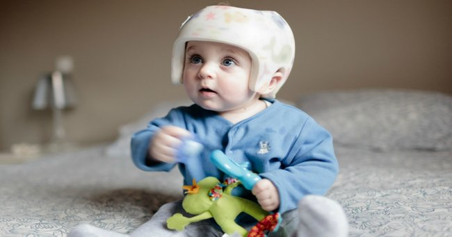 Parents Ignoring Sids Risk To Avoid Flat Head Syndrome