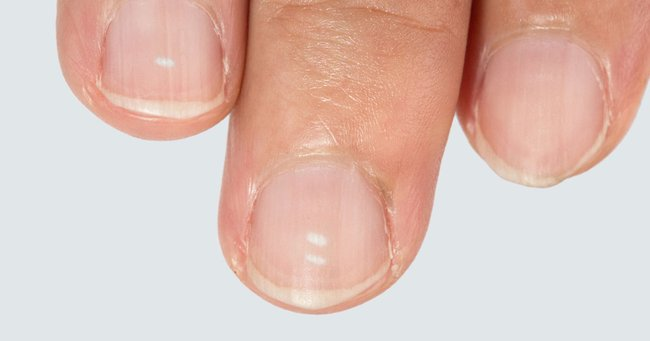 White marks on nails: Here\'s what they actually mean.