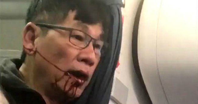 The doctor ripped off a United Airlines flight has a criminal past.