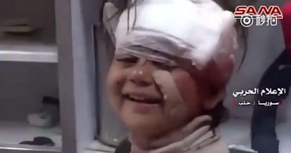 The moment a Syrian toddler injured in a deadly blast smiles for the camera.