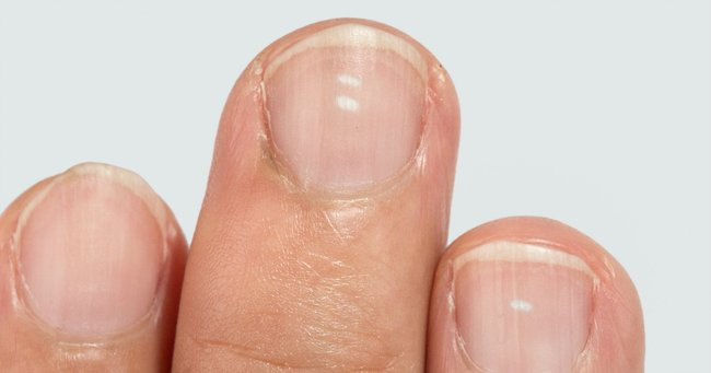 Five things your fingernails can say about your health.