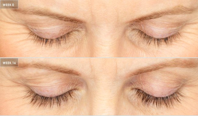 2271c277f6a Lashes after using Latisse for 16 weeks.