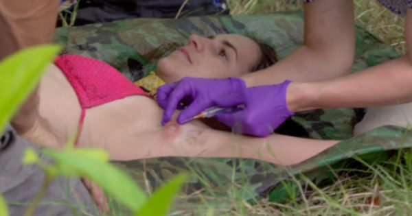 We have the unedited footage of Kate's boil on Survivor