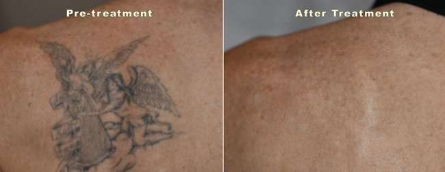 laser-tattoo-removal-before-and-after