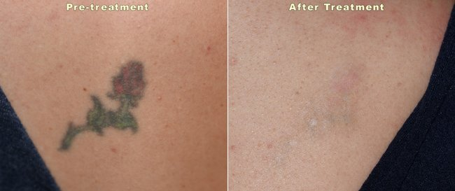 Laser tattoo removal: A doctor answers all your questions