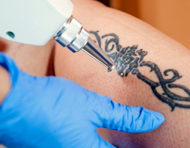 Laser Tattoo Removal A Doctor Answers All Your Questions And Concerns