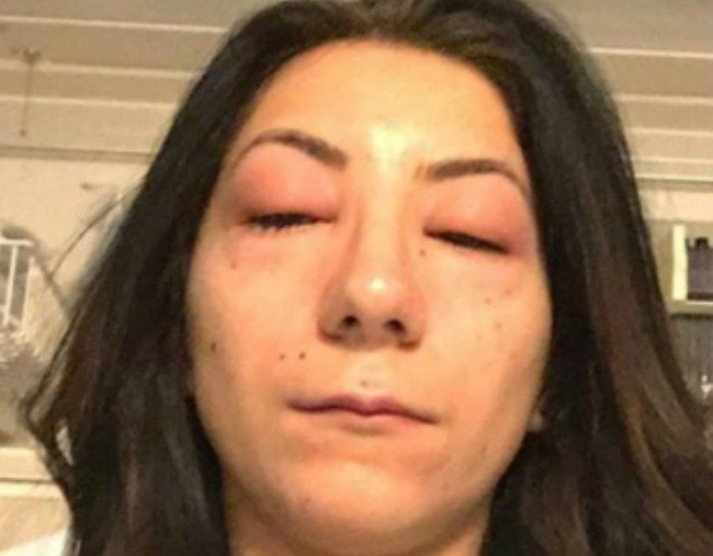 What Happened To A Woman Allergic To Eyelash Extensions