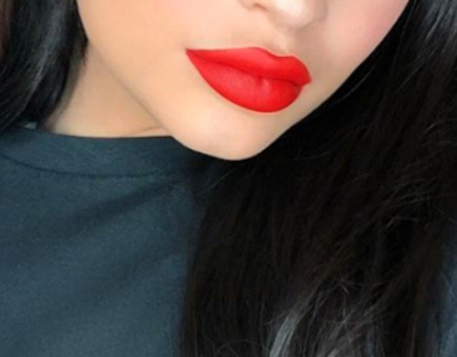 Lip filler price and why they're so prevalent in 2018