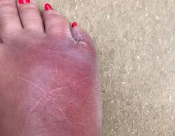 pedicure horror story