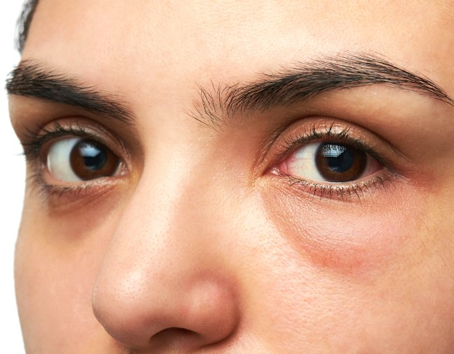 The pinch test that'll say if you have dark circles eyes or under ...