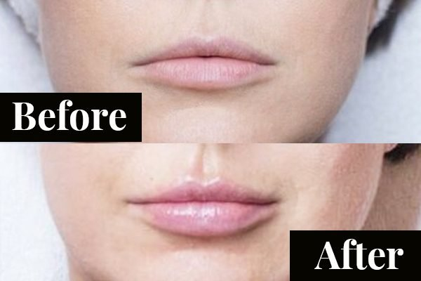Lip fillers before after: 'I got lip fillers and this is how