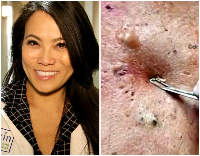 Dr Lee Pimple Popper On The Correct Diy Pimple Popping
