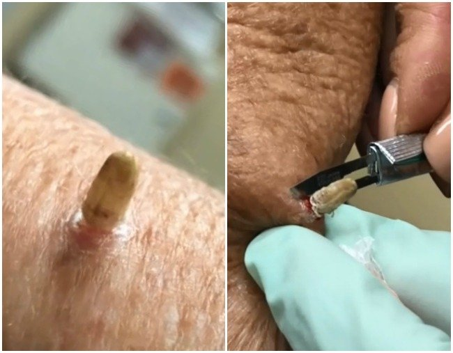 This Video Of Dr Pimple Popper Removing A Cutaneous Horn Is