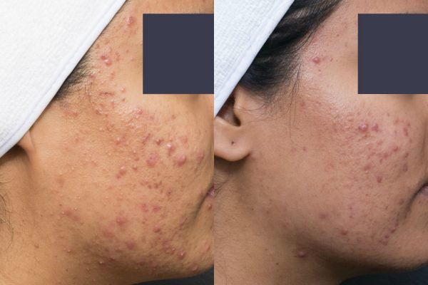 acne-close-up-before-and-after