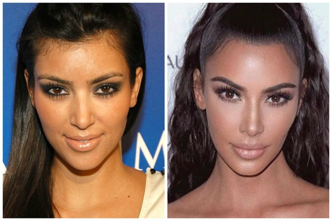 The big problem with plastic surgeons dissecting Kim Ks plastic surgery.