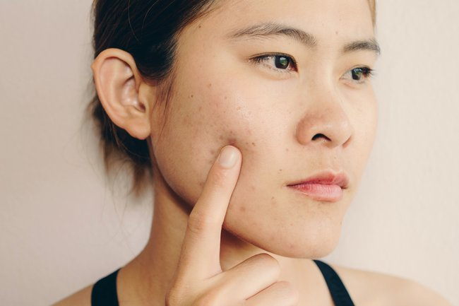 How To Get Rid Of Acne Scars Does Fraxel Laser Work