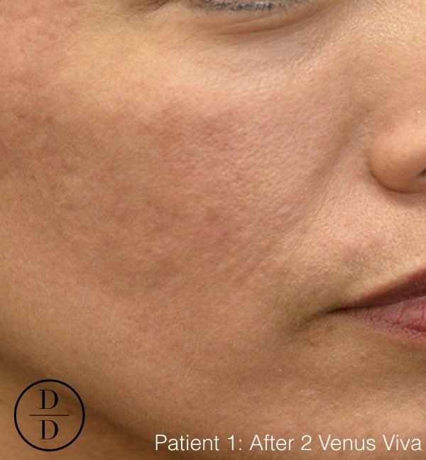Venus Viva before and after