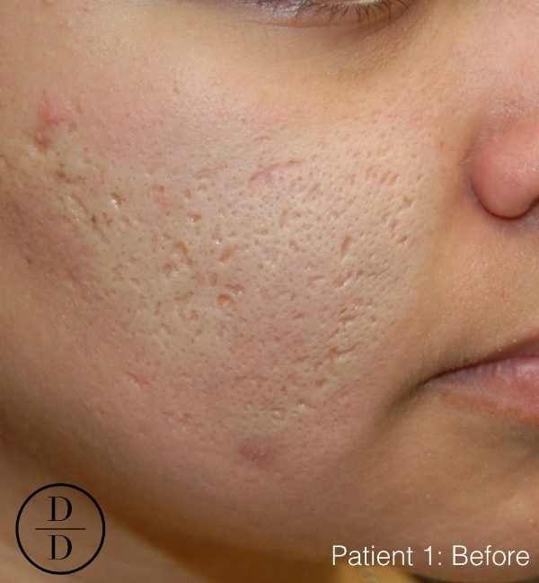 How to get rid of acne scars: Does Fraxel laser work?