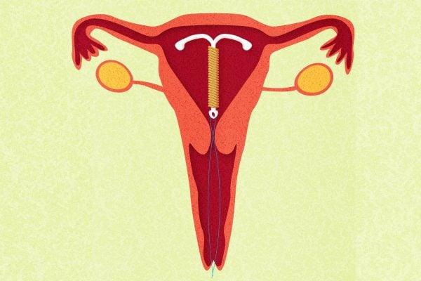 IUD-mirena-side-effects
