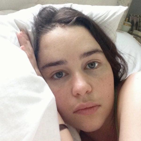 emilia clarke brain aneurysm