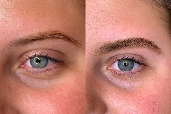 thin eyebrow before and after