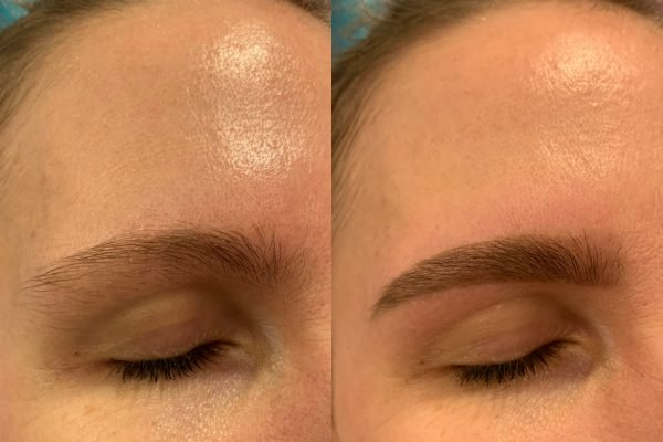 fair eyebrows before and after