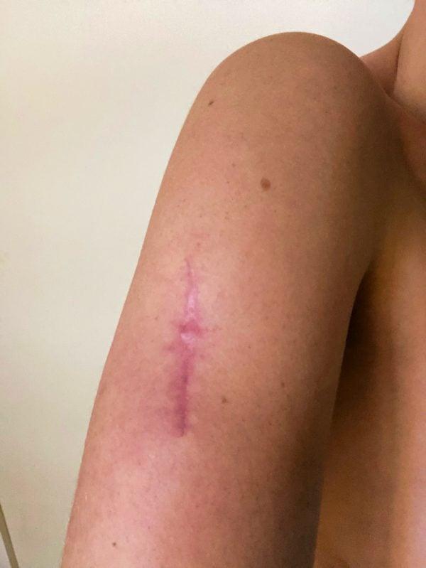 arm skin cancer scar