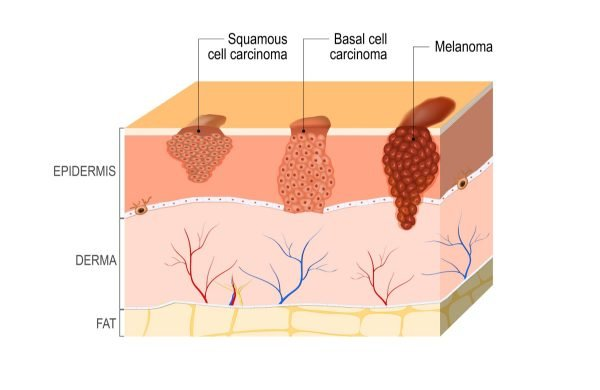 skin-cancer-diagram