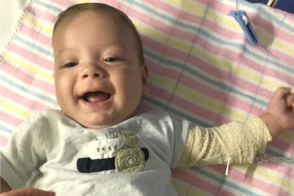 cystic fibrosis in babies